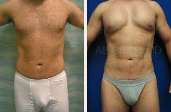 убрать лишний жир упражнения
