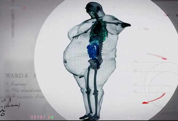 Увидеть себя через рентген и обалдеть
